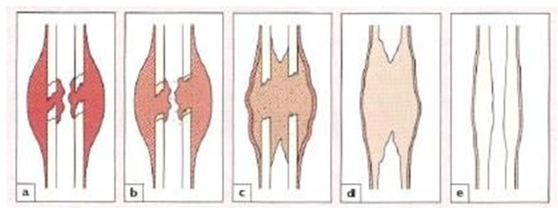 proses penyembuhan tulang