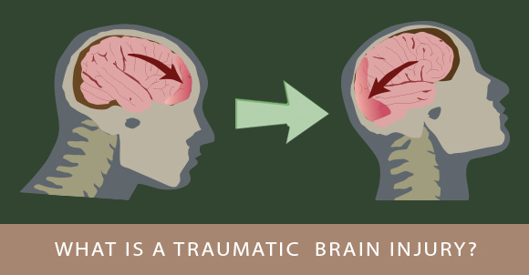 Kecederaan otak
