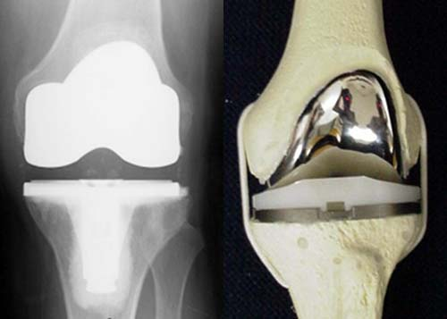 senaman sakit lutut