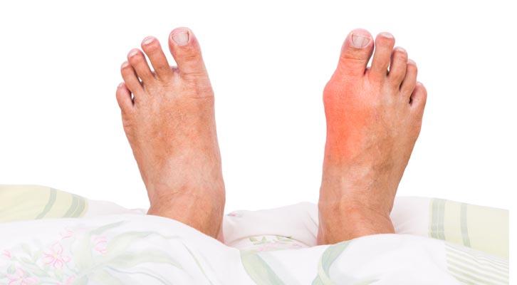 rawatan gout