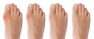 rawatan gout shah alam