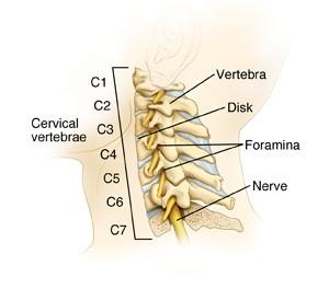pengenalan cervical spondylosis