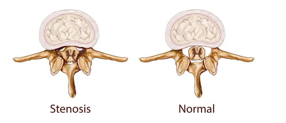 stenosis tulang belakang
