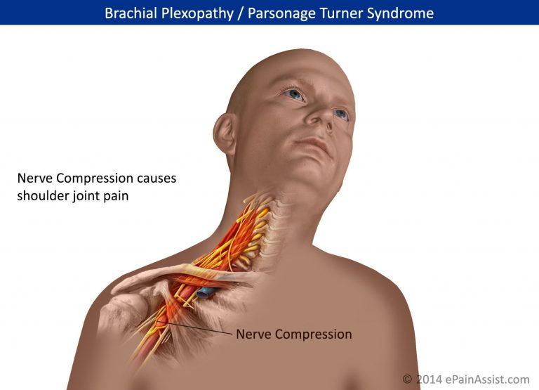 Sindrom Parsonage-Turner (PTS)