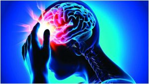 rawatan stroke